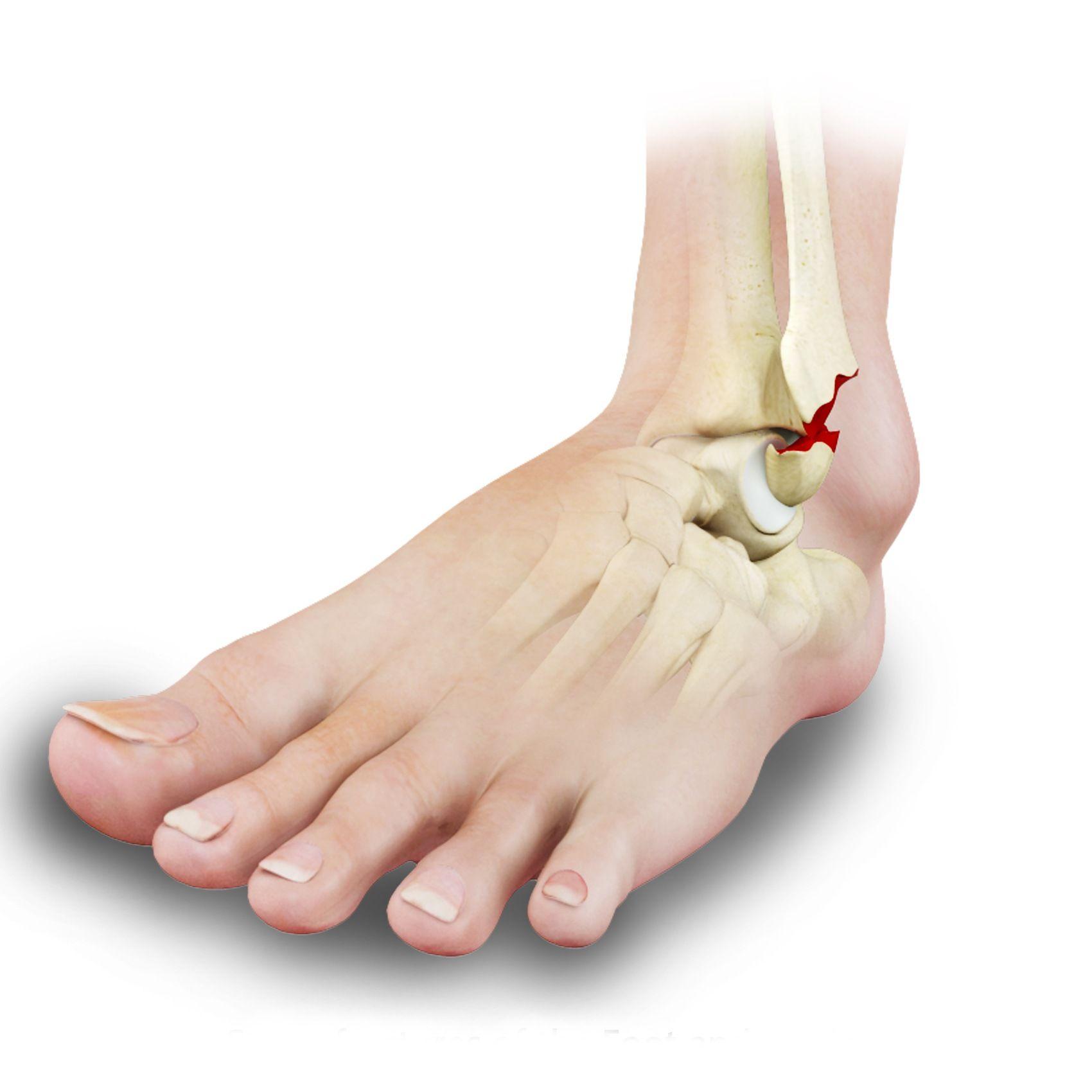 Ankle Fracture Repair Los Angeles Broken Ankle Glendale Pasadena