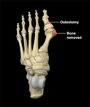 Foot Reconstruction