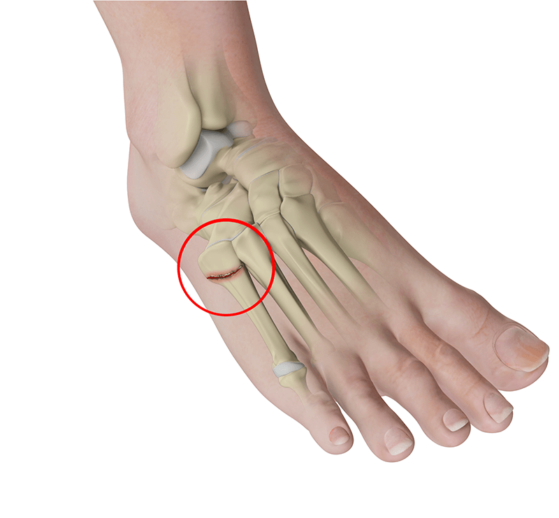 Jones Fractures (5th Metatarsal) Glendale | Metatarsal